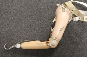 Prostheic arm